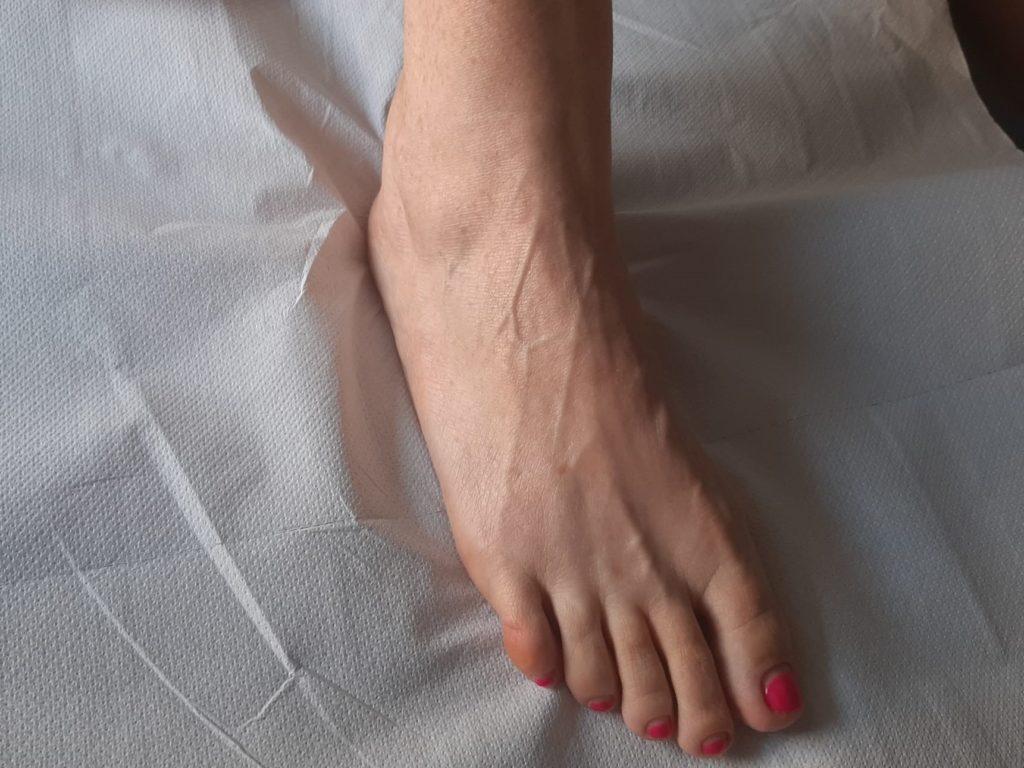 Gomma Articolare